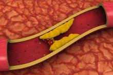 Как избавиться от холестерина?