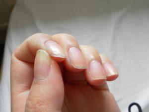 Из за чего слоятся ногти